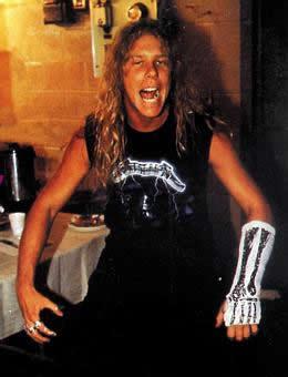 James Hetfield lesionado y resignado con cara de Ajo y Agua